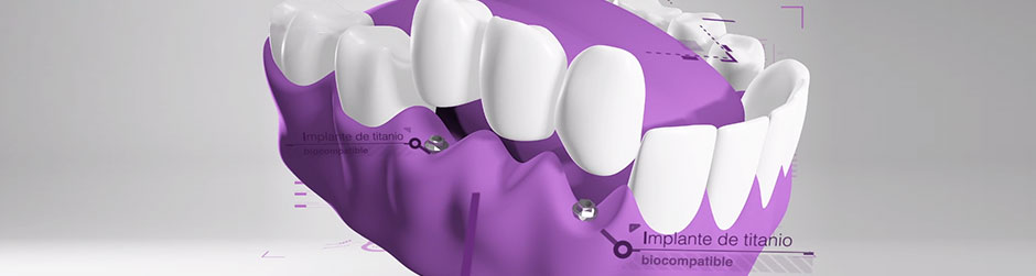 Implantes dentales titanio
